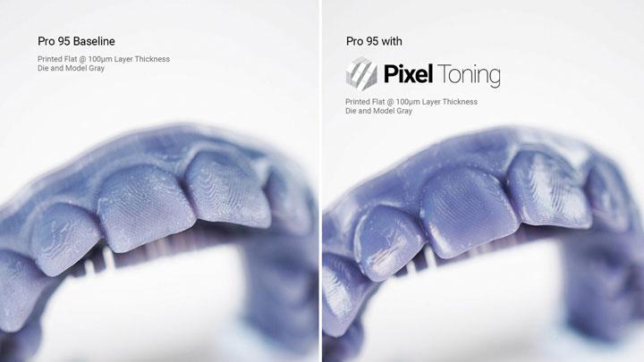 به روزرسانی نرم افزار و پروفایل های رزین در پرینتر سه بعدی دندان پزشکی