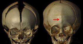 پرینت سه بعدی در جراحی جمجمه