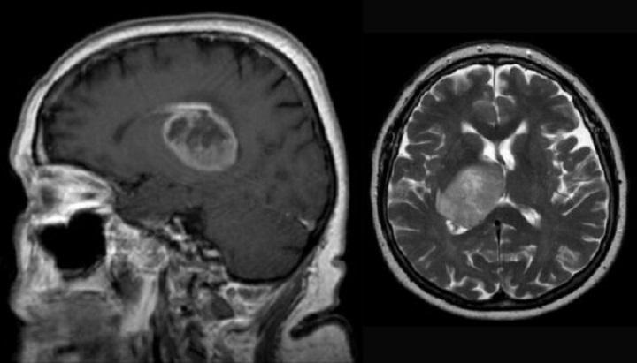 تومور گلیوبلاستوما به تهاجمی بودن و درمان دشوار شناخته می شوند